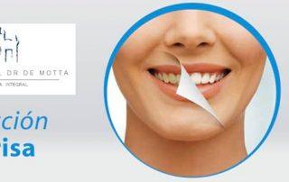 blanqueamiento-dental-demotta
