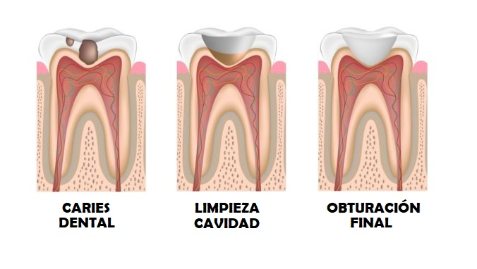 caries-tratamiento-salud-bucal-dentista-valencia-drdemotta