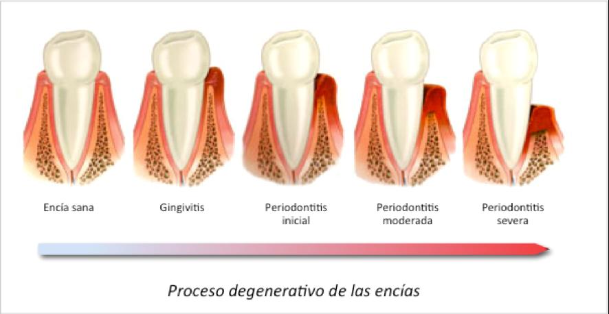 gingivitis-periodontitis-encias-salud-dentista-valencia-drdemotta