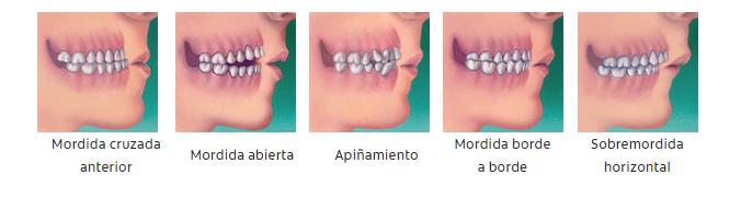 ortodoncia-tipos-patologías-maloclusiones-valencia