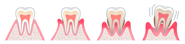 periodoncia-dentista-valencia-drdemotta-salud-bucal
