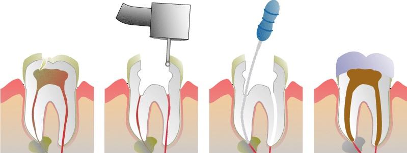 tratamiento-endodoncia-conductos-dentista-valencia-drdemotta